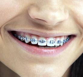 dantų tiesinimas